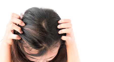 itchy: Closeup woman hand itchy scalp, Hair care concept