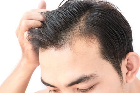 problema de pérdida de cabello hombre joven preocupación para el champú cuidado de la salud y el concepto de producto de belleza Foto de archivo