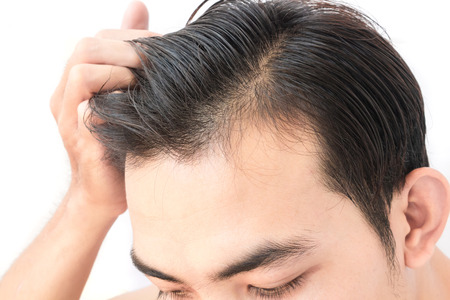 Young man worry hair loss problem for health care shampoo and beauty product concept Foto de archivo
