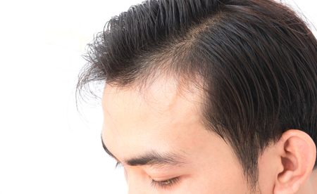 hairline: Young man worry hair loss problem for health care shampoo and beauty product concept Stock Photo