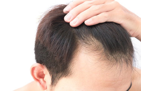Young man worry hair loss problem for health care shampoo and beauty product concept 免版税图像