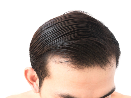 receding: Young man worry hair loss problem for health care shampoo and beauty product concept Stock Photo