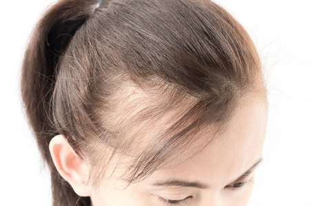 comb hair: Woman serious hair loss problem for health care shampoo and beauty product concept