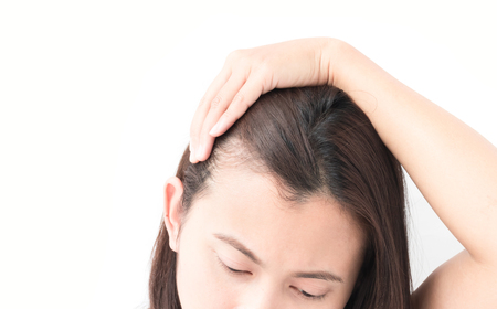Woman serious hair loss problem for health care shampoo and beauty product concept