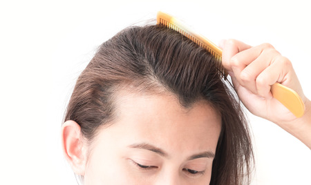 hairline: Woman serious hair loss problem for health care shampoo and beauty product concept