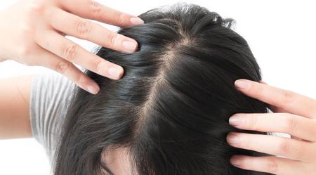 Vrouw ernstig haaruitval probleem voor de gezondheidszorg shampoo en beauty productconcept Stockfoto