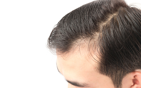 receding: Closeup young man serious hair loss problem for health care shampoo and beauty product concept