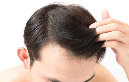 Closeup young man serious hair loss problem for health care shampoo and beauty product concept