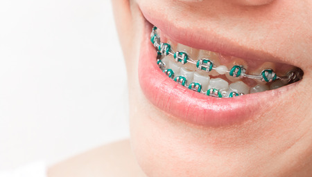 Close up woman smiling with Ceramic and Metal Braces 스톡 콘텐츠