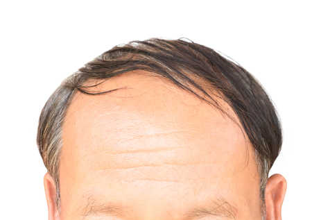 Old man serious hair loss problem for health care shampoo and beauty product concept