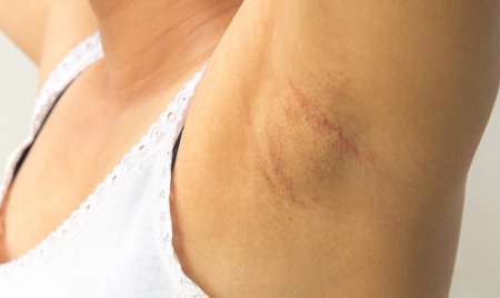 underarms: Women problem black armpit on white background for skin care and beauty concept