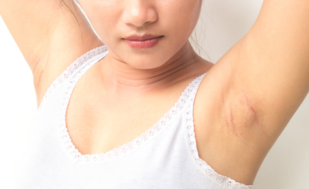 Women problem black armpit for skin care and beauty concept