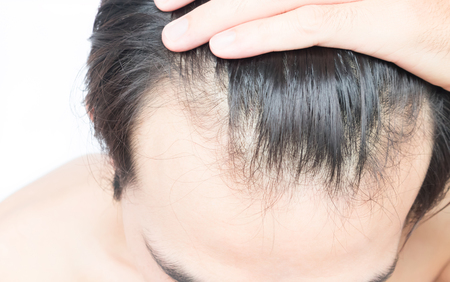 hairline: Young man serious hair loss problem for health care shampoo and beauty product concept