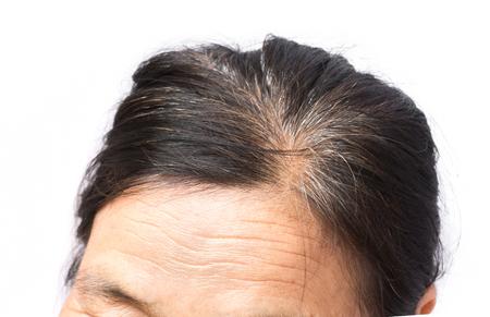 이 마와 회색 머리에 근접 촬영 주름 늙은 여자, 건강 관리 및 의료 개념