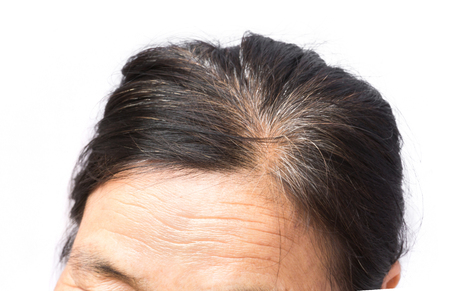 Closeup wrinkles on forehead and grey hair old woman, health care and medical concept