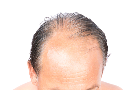 Closeup old man serious hair loss problem and gray for health care shampoo and beauty product concept
