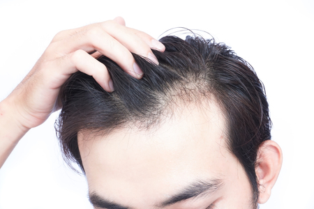 Young man serious hair loss problem for health care medical and shampoo product concept Stock Photo