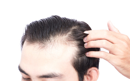 Young man serious hair loss problem for health care medical and shampoo product concept Standard-Bild