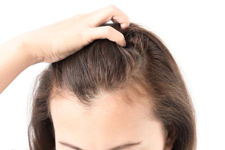 Problema serio di perdita di capelli della donna per lo sciampo di sanità e il concetto di prodotto di bellezza Archivio Fotografico