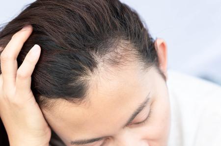 Femme problème de perte de cheveux grave pour le shampooing de soins de santé et le concept de produit de beauté Banque d'images