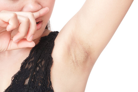 Women problem black armpit on white background for skin care and beauty concept