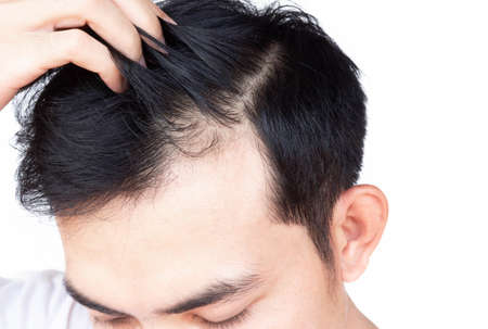 Young man serious hair loss problem for health care medical and shampoo product concept