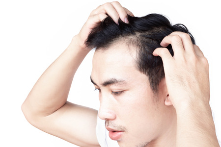 Young man serious hair loss problem for health care medical and shampoo product concept 版權商用圖片