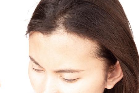Frau ernstes Haarausfallproblem für Gesundheitsshampoo und Schönheitsproduktkonzept, selektiver Fokus Standard-Bild