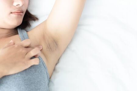 Women problem black armpit lying on white bed background for skin care and beauty concept, selective focus