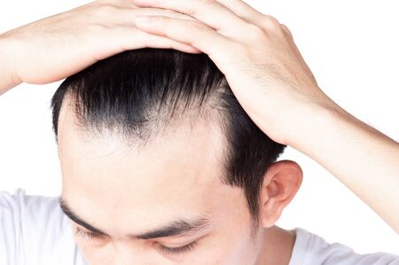 Young man serious hair loss problem for health care medical and shampoo product concept Banco de Imagens