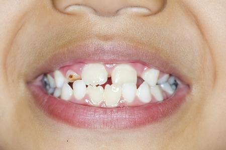 dientes con caries: Asiático sonrisa de niño con los dientes cariados Foto de archivo