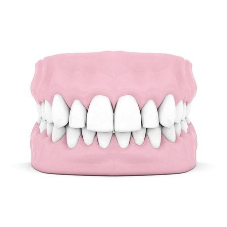 Dentures isolated on a white background Stock Photo - 21773001