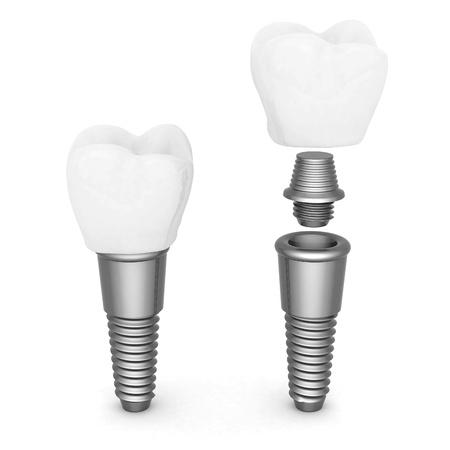 Dental implants isolated on white background