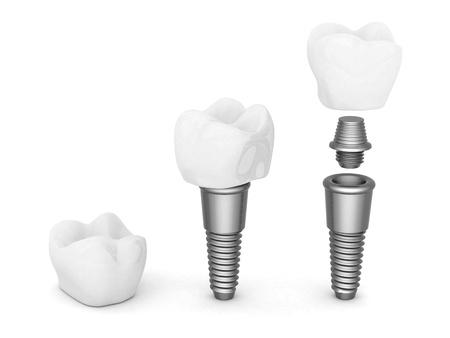 Zahnimplantate isoliert auf weißem Hintergrund