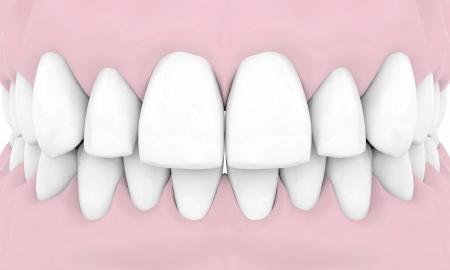 dental implants: Dental implants isolated on white background