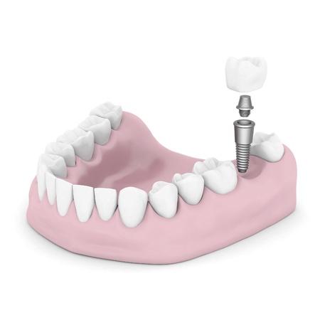 白い背景で隔離の歯科インプラント