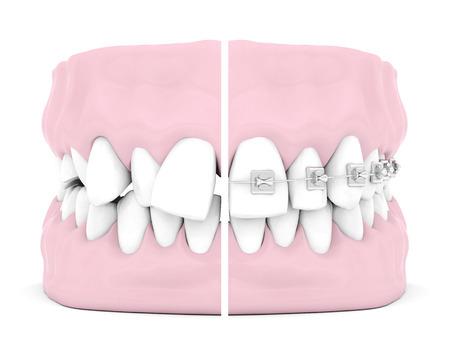 Zahnspangen isoliert auf weißem Hintergrund