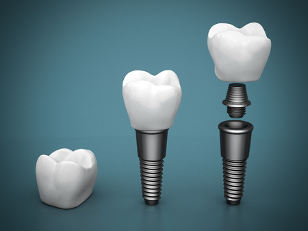 implants: Dental implants on a beautiful blue background Stock Photo