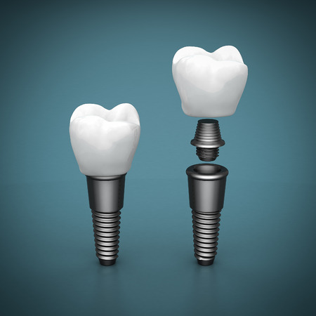 Dental implants on a beautiful blue background Stok Fotoğraf