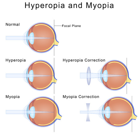 concave: Myopia and Hyperopia Stock Photo