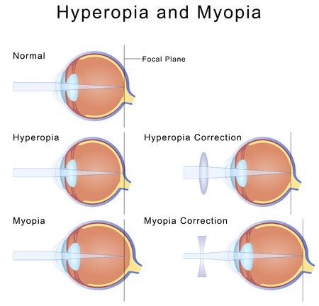 Myopia and Hyperopia Banque d'images