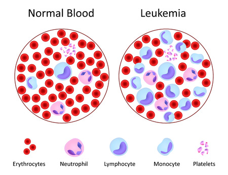 leucemia: Normal de la sangre contra la leucemia
