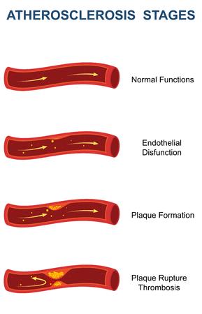 atherosclerosis: Stages of Atherosclerosis Stock Photo