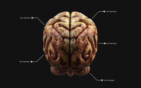 Medically 3d illustration of the human brain in rear view isolated on black background 스톡 콘텐츠
