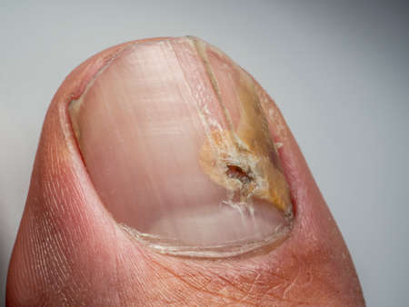 Nail infections caused by fungi such as: onychomycosis also known as tinea unguium. Thumb infection. Caused by dermatophytes and yeasts and for the concomitant antibacterial activity Banque d'images