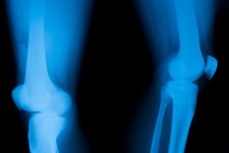 luxacion: Dislocaci�n de la r�tula.
