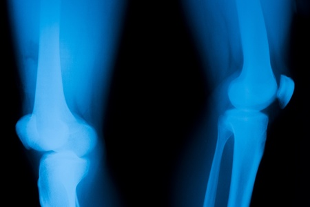 dislocation: Patella dislocation.