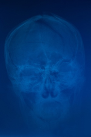 X-ray of deformed skull front Stock Photo - 12004255