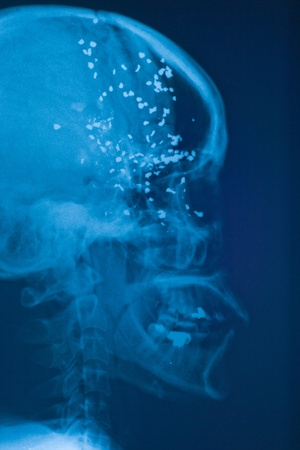 X-ray images, bullets embedded in the skull. Stock Photo