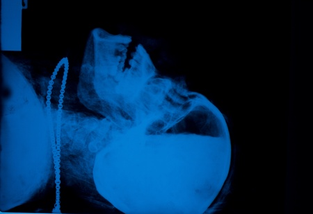 X-ray image of a body of water in the skull. The skin is filled with worms.